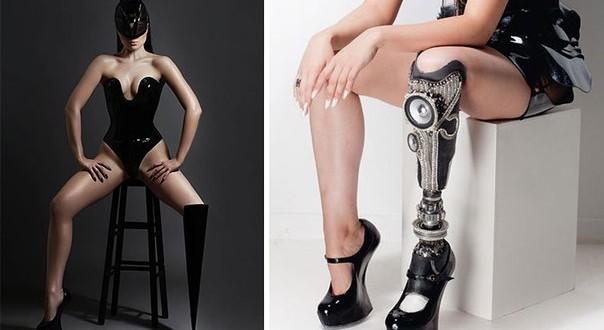 Инвалидность - это не приговор. Это вызов