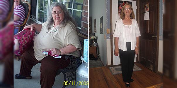 Похудеть для здоровья - история Памелы Холмс